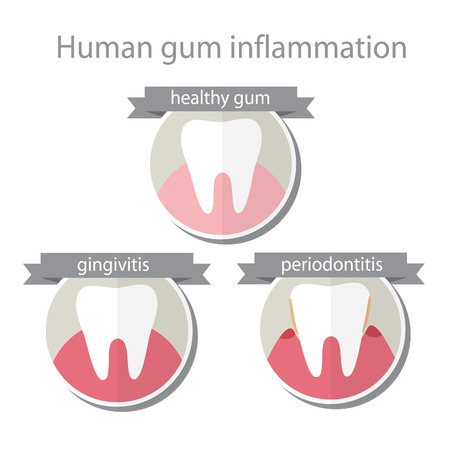 digestive disease: Human gum inflammation. EPS 10 vector file.