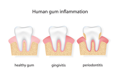 periodontal: Human gum inflammation. EPS 10 vector file.