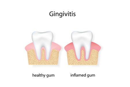 bacterial plaque: Gingivitis. vector file.