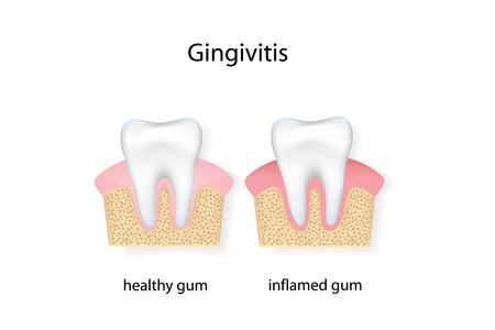 gingivitis: Gingivitis. vector file.