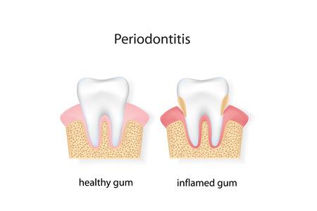 huesos humanos: La periodontitis. archivo vectorial. Vectores