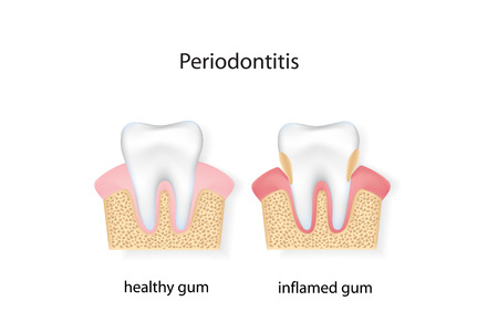 bacterial plaque: Periodontitis. vector file.