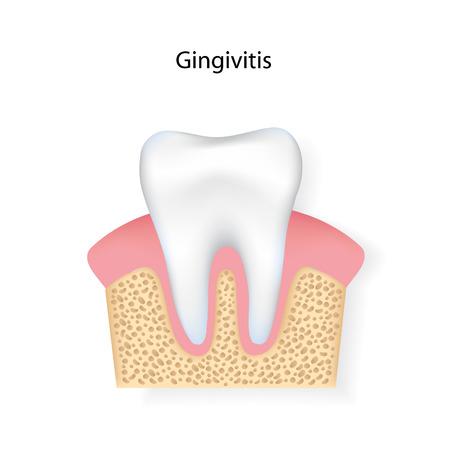 Gingivitis. Imagens - 43608684