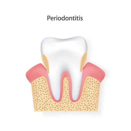 Periodontitis.