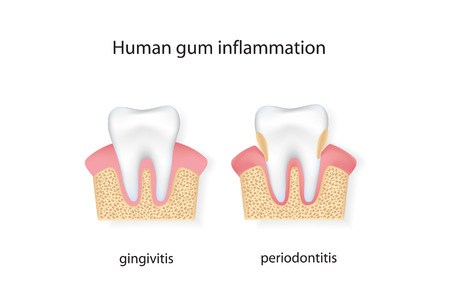 Human gum inflammation. Illustration