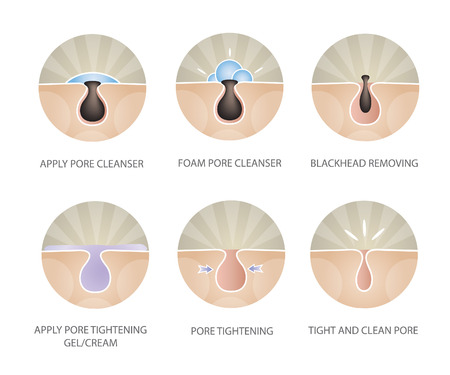 clear skin: Blackheads removing and pore cleansing symbols set.