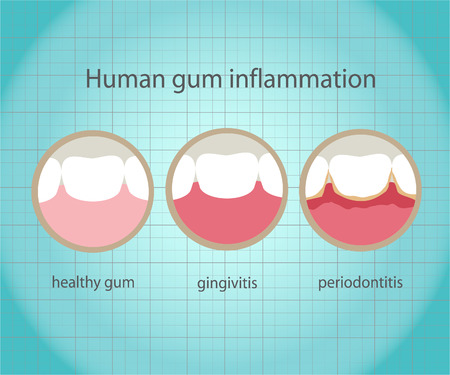 bacterial plaque: Human gum inflammation