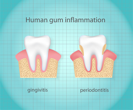 Human gum inflammation. Çizim