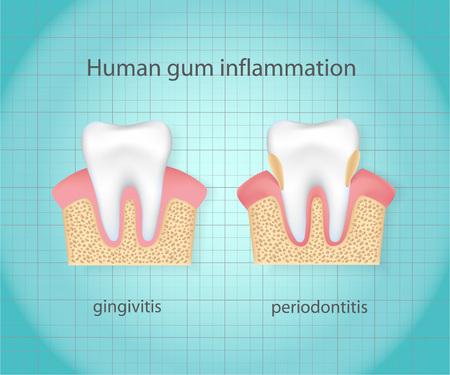 degeneration: Human gum inflammation. Illustration
