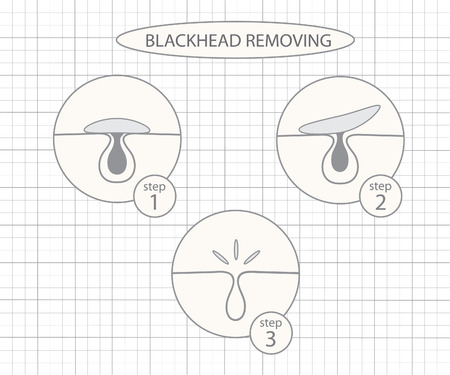 removing: Blackhead removing