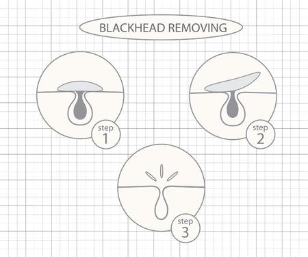 tight body: Blackhead removing