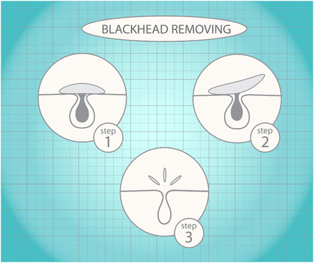 blackhead: Blackhead removing