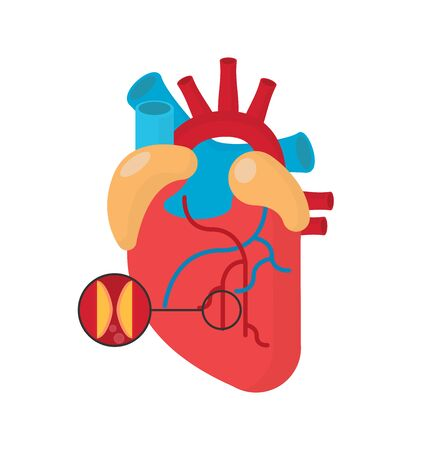 Heart attack concept in flat style vector image