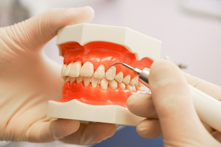 periodontitis: At the dentist