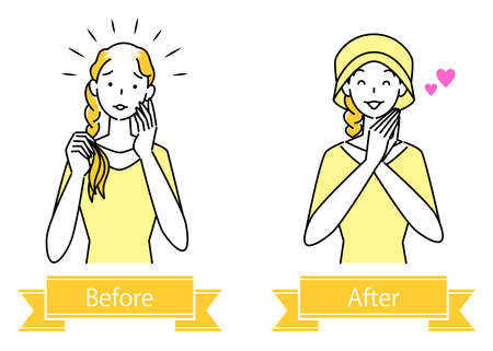 Hair Care Before And After Illustration Simple Vector of Cute Woman Wearing A Stylish Care Hat For Medical Use With Thinning Hair Measures Hair Care. Before and after of a pretty woman wearing a stylish medical care hat to hide her thinning hair. Simple illustration. vector. Stock Illustratie