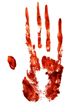 cut and blood:  Bloody hand print isolated on white background