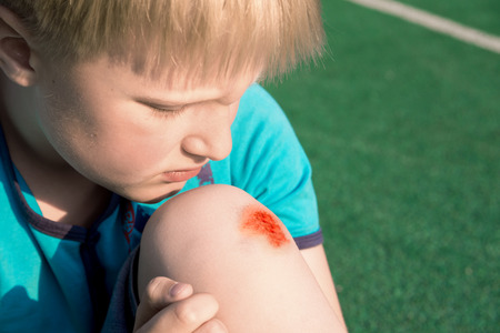 Boy with a scraped knee outdoor. Wound on boy knee after accident. Stockfoto