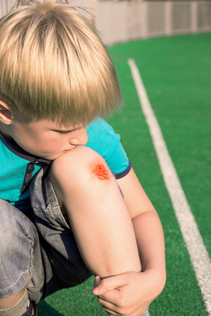 Boy with a scraped knee outdoor. Wound on boy knee after accident. photo