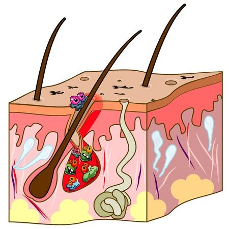 Huid sectie met haar en acne met cartoon ziektekiemen
