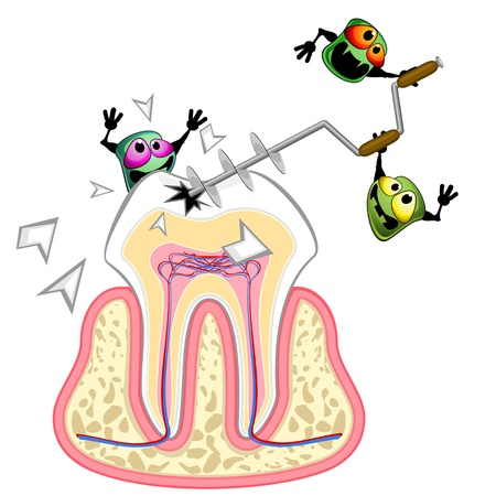 dental caries: Tooth section and aggressive germs with big drill