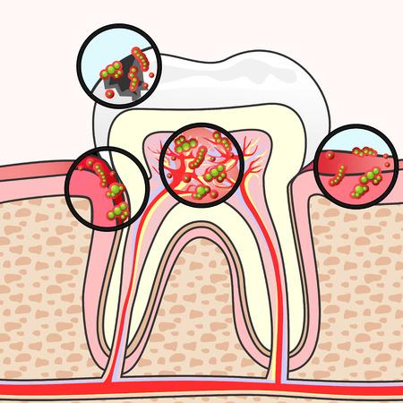 higiene bucal: Esquema de la sección del diente con diferentes daños y gérmenes