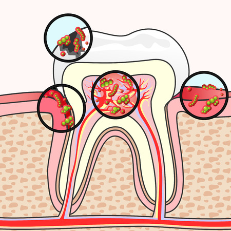 gum: Scheme of tooth section with different damages and germs