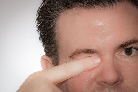 男は彼の指と彼の目の 1 つをこすり。