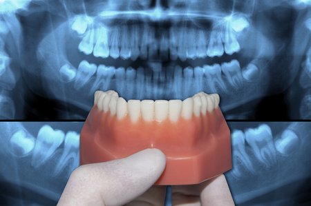 dentist show inferior arch over x-ray teeth