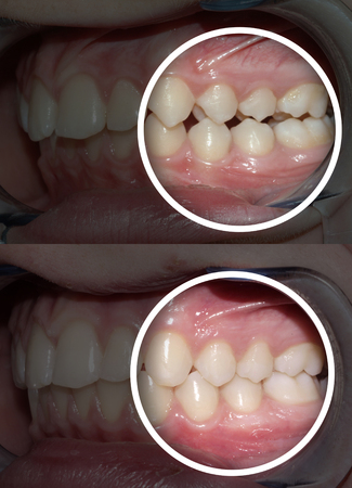 malocclusion before and after orthodontic treatment