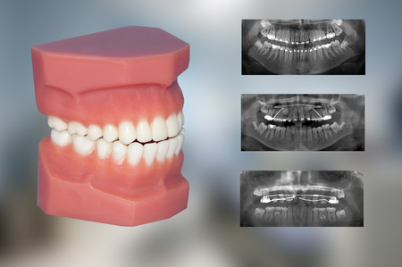 orthodontic: orthodontic treatments
