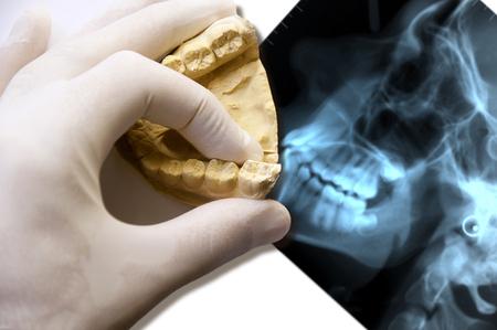 molar: dentist hand show over molar tooth x-ray