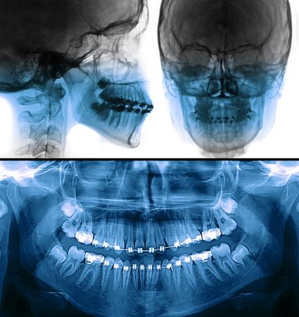 歯科スキャン セファロ、パノラマ x 線 写真素材
