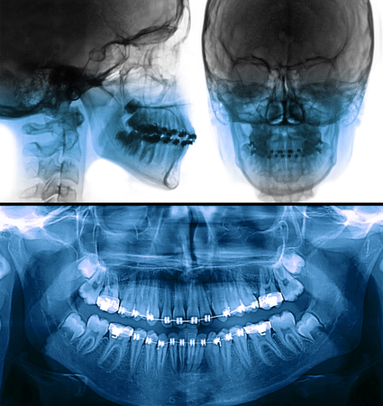 Scan dental cefalométrico y radiografía panorámica
