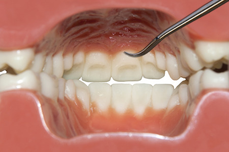dental examination: dental examination