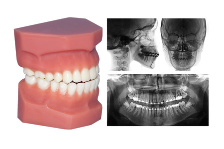 fix jaw: orthodontic treatment perfect smiling Stock Photo