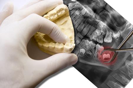 dentiste dents simule d'extraction