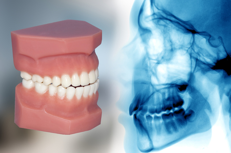 cephalometric and teeth model smiling