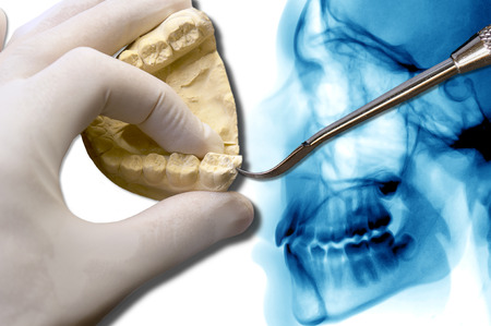 molar: show dentist molar tooth over cephalometric