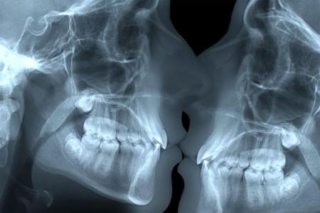 enamorados besandose: amantes que se besan radiografía