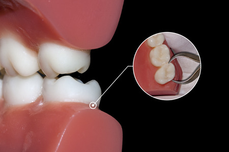 dental surgery: dental surgery tooth extraction