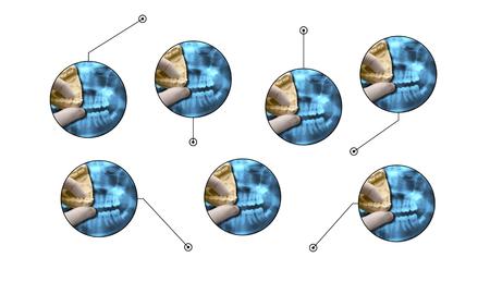 ortodoncia: gráfico de la ortodoncia