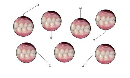 dental occlusion infopraphic elements Stock Photo