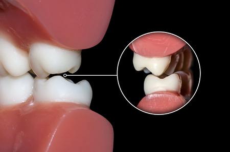 歯の噛み合わせ 写真素材