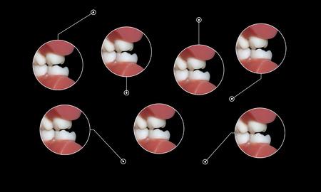 molares: dentales molares de oclusi�n los dientes Foto de archivo