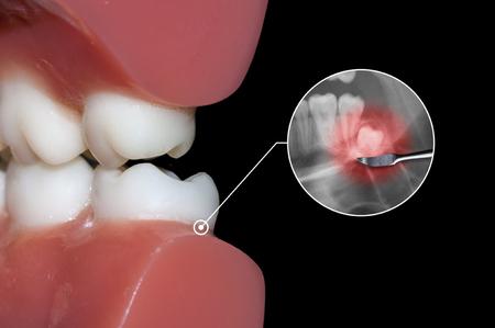 molares: muela del juicio y el impacto molar