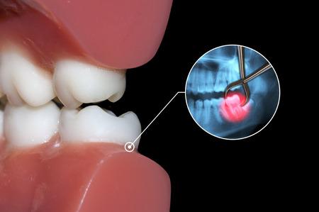 molares: operaci�n de la extracci�n del diente quir�rgica