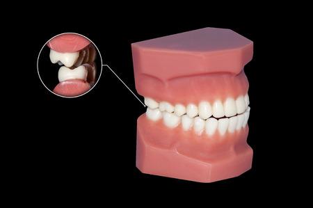 molars teeth gnashing examination Stock Photo