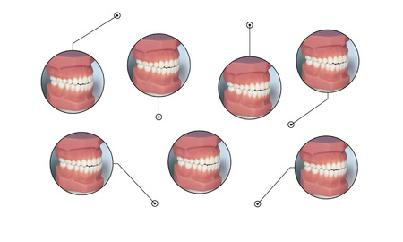 smiling teeth mold caption