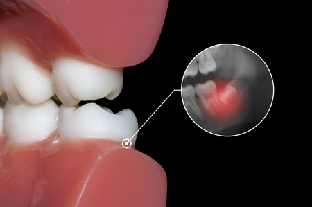 toothache: wisdom tooth toothache