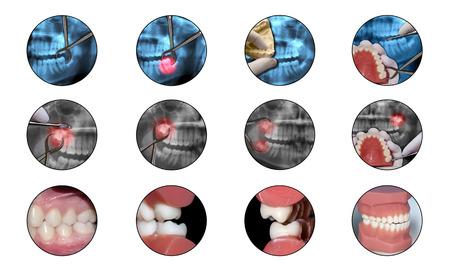 ortodoncia: iconos dentales ortodoncia Foto de archivo